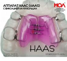 Аппарат Хаас (Haas) с фиксацией на 4-х кольцах