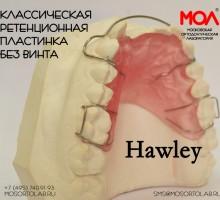 Аппарат Хаулея (Hawley) (классическая ретенционная пластинка без винта)