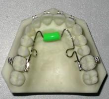 Несъемный ортодонтический аппарат Тугарина для тренинга языка