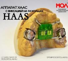 Аппарат Хаас (Haas) с фиксацией на 2-х кольцах со штангами