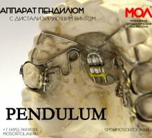 Аппарат Пендилюм (Pendilum) с дистализирующим винтом по Кинзингеру (Kinzinger)