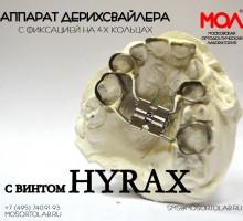 Аппарат Дерихсвайлера с винтом Hyrax с фиксаций на 4-х кольцах со штангами