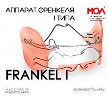 Регулятор функций Френкеля (Frankel) I типа (Frankel I) при протрузии резцов на верхней челюсти, дистальная окклюзия