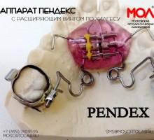 Аппарат Пендекс (Pendex/Pend-X) с расширяющим винтом по Хилгерсу (Hilgers)