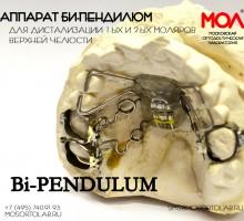 Аппарат Пендилюм (Pendilum) Би-пендилюм (Bi-pendulum) по Кинзингеру (Kinzinger) для дистализации 1-ых и 2-х моляров односторонний