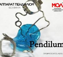 Аппарат Пендилюм (Pendilum) классический по Хилгерсу (Hilgers) (без винта) с фиксацией на 2-х кольцах и окклюзионных лапках