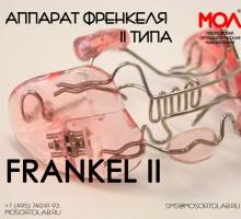 Регулятор функций Френкеля (Frankel) II типа (Frankel II) при ретрузии резцов на верхней челюсти, дистальная окклюзия