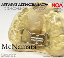 Аппарат Дерихсвайлера с винтом Hyrax с фиксацией на каппах по МасНамара (McNamara)